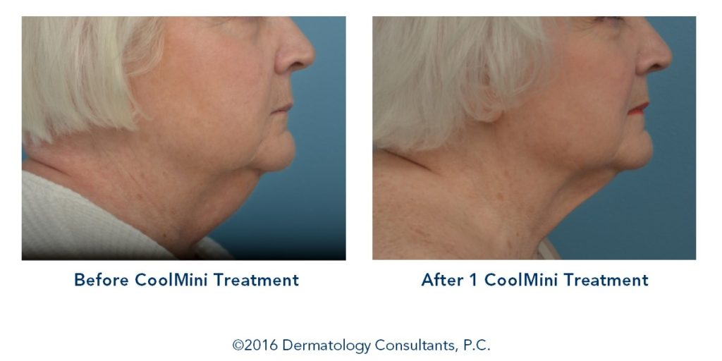 CoolSculpting Atlanta Before-and-After Photos
