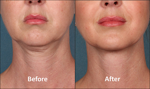 Before treatment with Kybella in Atlanta.