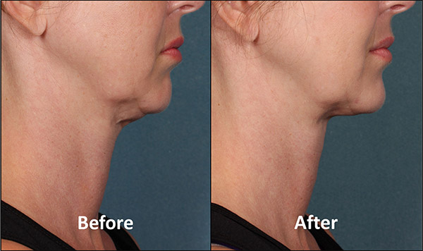 After treatment with Kybella in Atlanta.