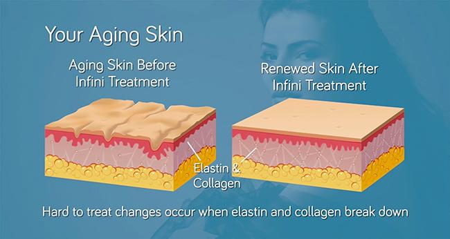 Aging skin diagram