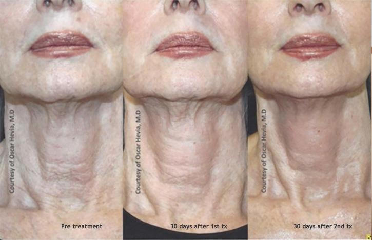 Infini Atlanta | Dermatology Consultants | Atlanta Marietta Covington