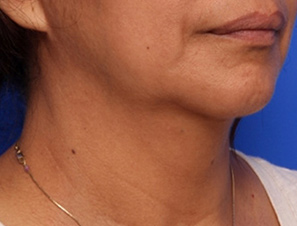 Infini Atlanta | Dermatology Consultants | Atlanta Marietta