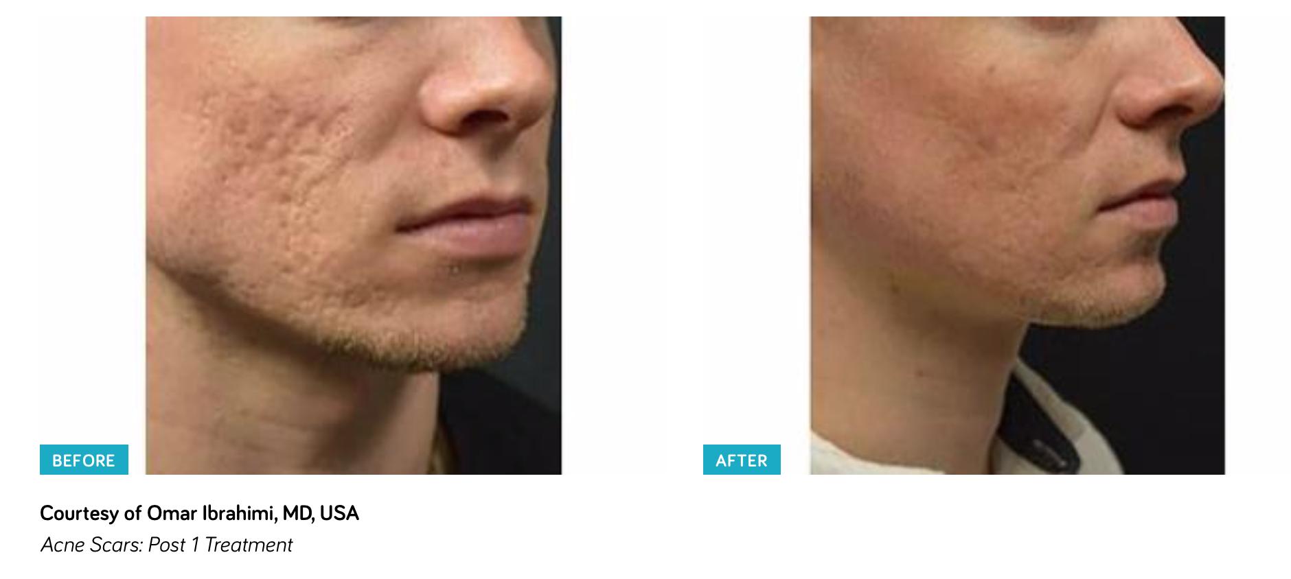 Infini - Dermatology Consultants