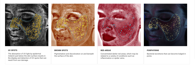 VISIA Complexion Analysis - Dermatology Consultants